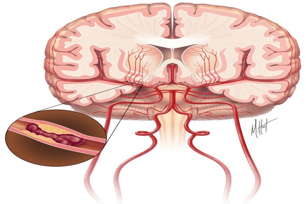 An illustration of a cross section of a brain with an ischemic stroke.