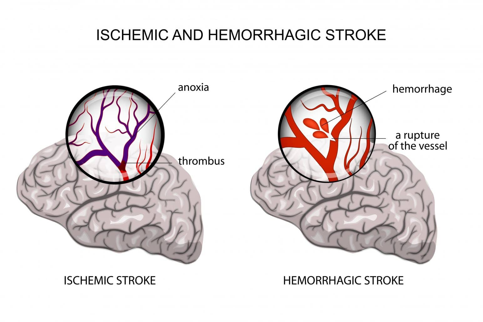 Stroke malpractice can occur with ischemic stroke and hemorrhagic stroke.