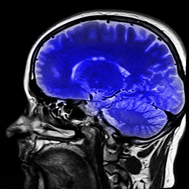 Side view of brain CT to diagnose brain stem stroke