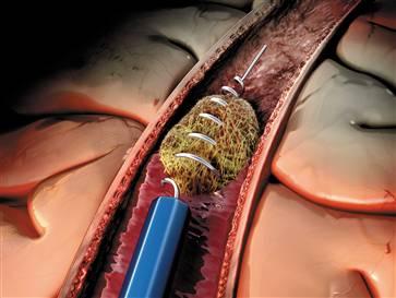Endovascular removal of clot causing brain stem stroke.