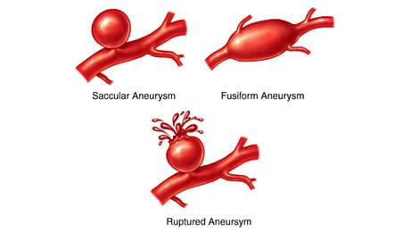 A ruptured brain aneurysm, possibly due to medical malpractice.