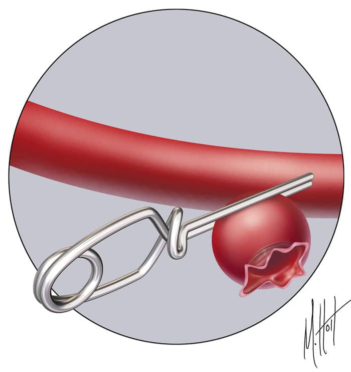 A doctor or hospital has clipped an aneurysm to avoid medical malpractice.